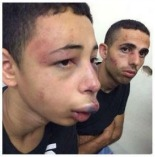 MPAC Calls on Sec. Kerry to Intervene in Israeli Beating of Florida Teenager